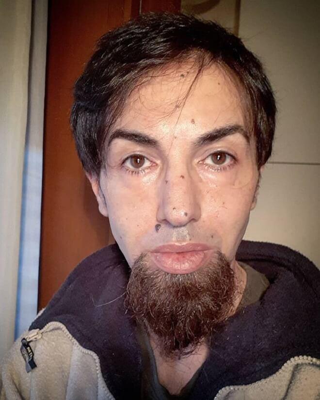 Goatee Beard Without Mustache